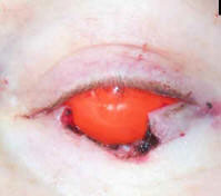 Intraoperative photo with large defect in left lower eyelid to completely remove cancer