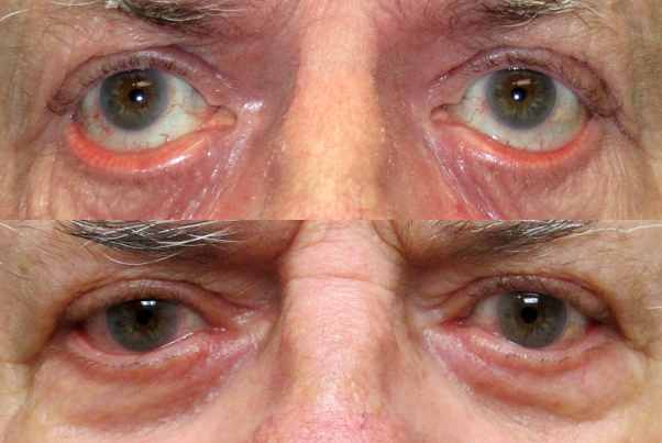 Before and After Ectropion